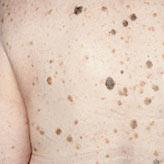Cheratosi seborroica - Dott. Aligi Franchi
